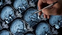 Стало известно как коронавирус проникает в мозг и повреждает его
